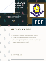 lung Metastatic