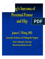 ewings sarcoma