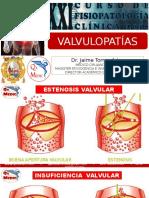 T6_Valvulopatias