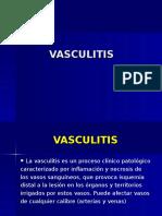 vasculitis-4.ppt