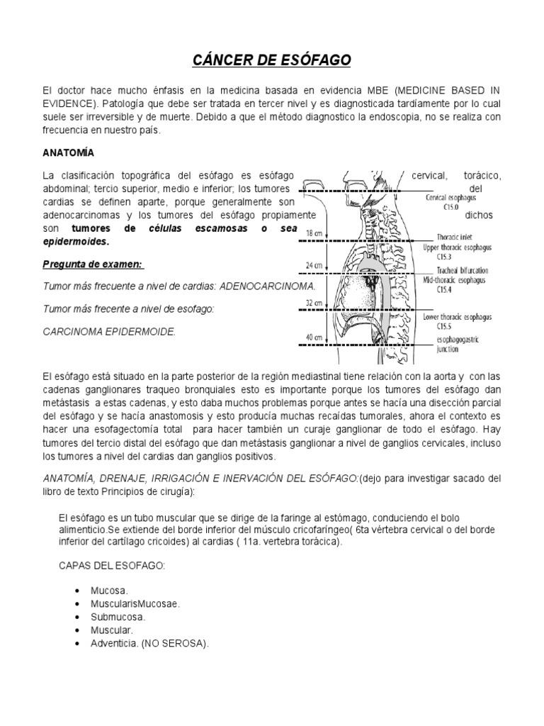 Cancer de Esofago..