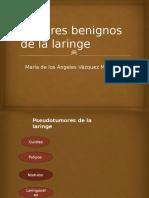 Tumores Benignos de La Laringe