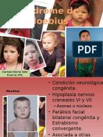 Síndrome de Moebius