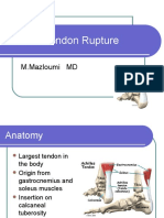 Achilles Tendon.ppt