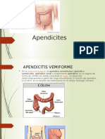 Apendicites