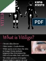 KenaLeen Cream and Vitiligo