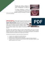Atriccion Dental