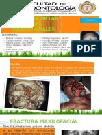 Etiología de Las Fmf