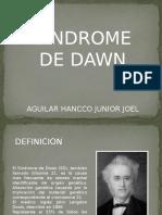 Sindrome de Dawn