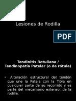 Lesiones de Rodilla
