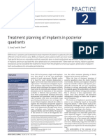 Treatment Planning of Implants in Posterior Quadrants