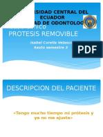 Caso Clínico Protesis Removible