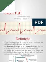 Apresentação ECG normal