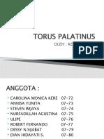 Torus Palatinus Slide