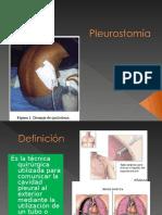 Pleurotomía