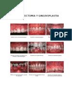 Gingivectomia y Gingivoplastia Gigantografia