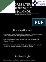 tumoresuterinosbenignosymalignos