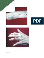 Lesiones de La Piel