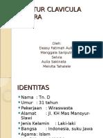 62819930 Fraktur Clavicula Dextra