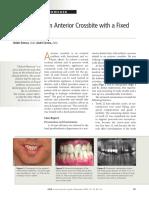 crossbite anterior