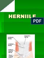 hernii