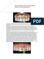 A Biometric Approach to Aesthetic Crown Lengthening