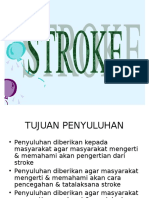 Power Point Stroke