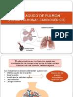 EDEMA AGUDO DE PULMÓN.pptx