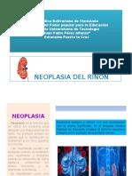 Neoplasia Del Riñon