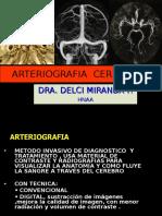 Diagnóstico Por Imagen - Arteriografía Cerebral