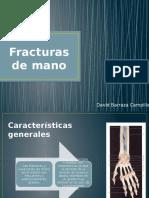 Presentacion Fractura Mano