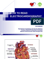 ECG interpretation.ppt