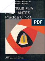Prótesis Fija e Implantes - E. Fernández Bodereau