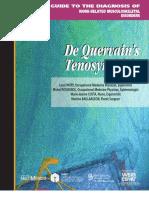 De Quervain s Tenosynovitis