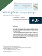 Colectomie Gauche Pour Cancer Par Laparoscopie
