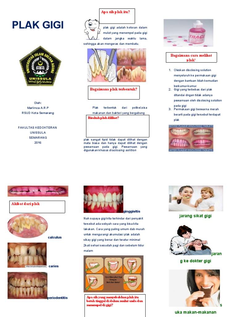 299921448 Leaflet Karang Gigi