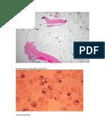 Bonemarrow Aplastic Anemia