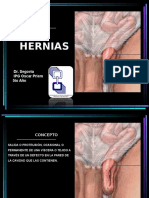 hernias-121001205639-phpapp02.ppt