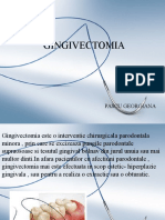GINGIVECTOMIA
