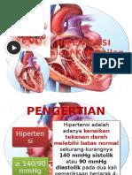 Penyuluhan 1 Hipertensi Dalam Kehamilan