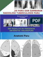282760654 Gambaran Radiologi TB Paru