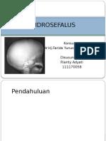 Hidrosefalus