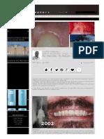 http-www.styleitaliano.org-fill-and-drill-technique-case-report (1).pdf