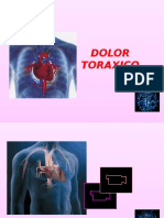 Dolor Toraxico