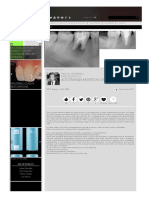 Http Www.styleitaliano.org Autotransplantation of Third Molar