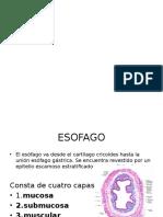 ESOFAGITIS PPT