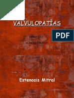 valvulopatias-1223655693446467-9