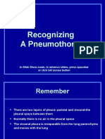 Recognizing Pneumothorax