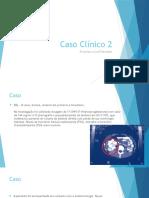 A Hiperplasia Adrenal Congênita (HAC),  Hiperplasia Congênita Da Suprarrenal (HCSR)