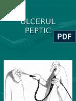 Ulcerul Peptic